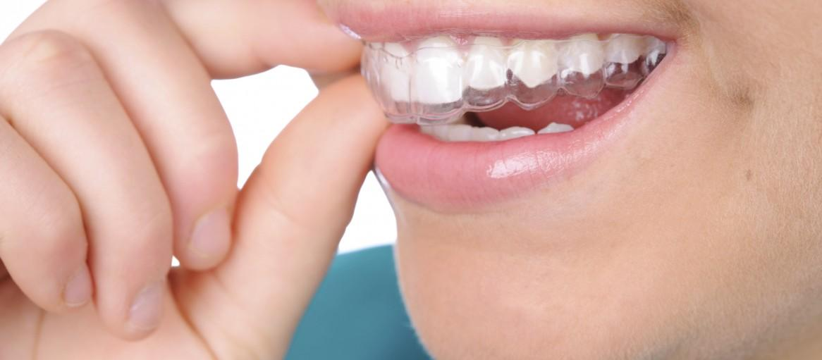 How the orthodontic sector can increase revenue with clear aligners!