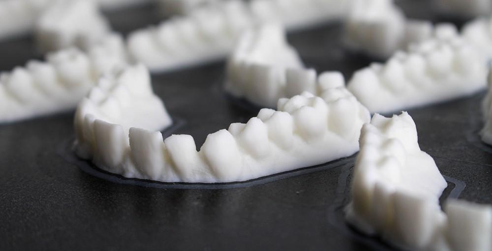 The advantages of 3D printing for dental