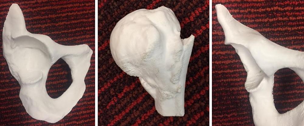 3D printed Acetabular (hip socket) and 3D printed bone for study