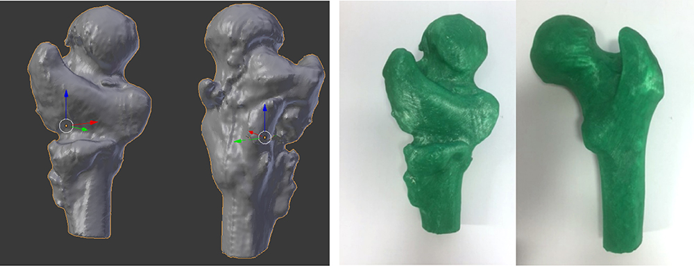 Previously fractured femur scan and 3D printed